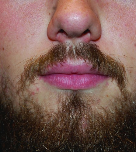 No-Shave November raises prostate, testicular cancer awareness